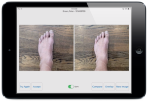 Epitomyze Capture App - image comparison and review for clinical photography