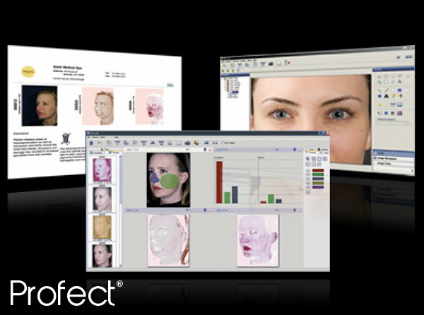 profect-medical-equipment-clinical-photography-imaging-software