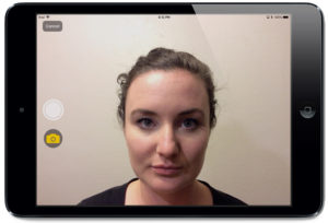 Epitomyze Capture™ app Live Preview