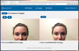 Epitomyze Cloud™ Compare Images