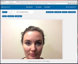 Epitomyze Cloud™ Patient Image Viewer