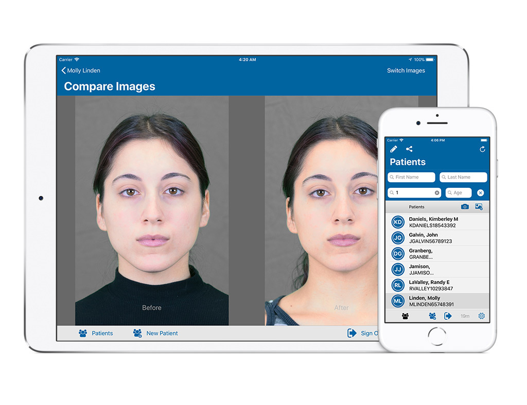 Epitomyze Capture app