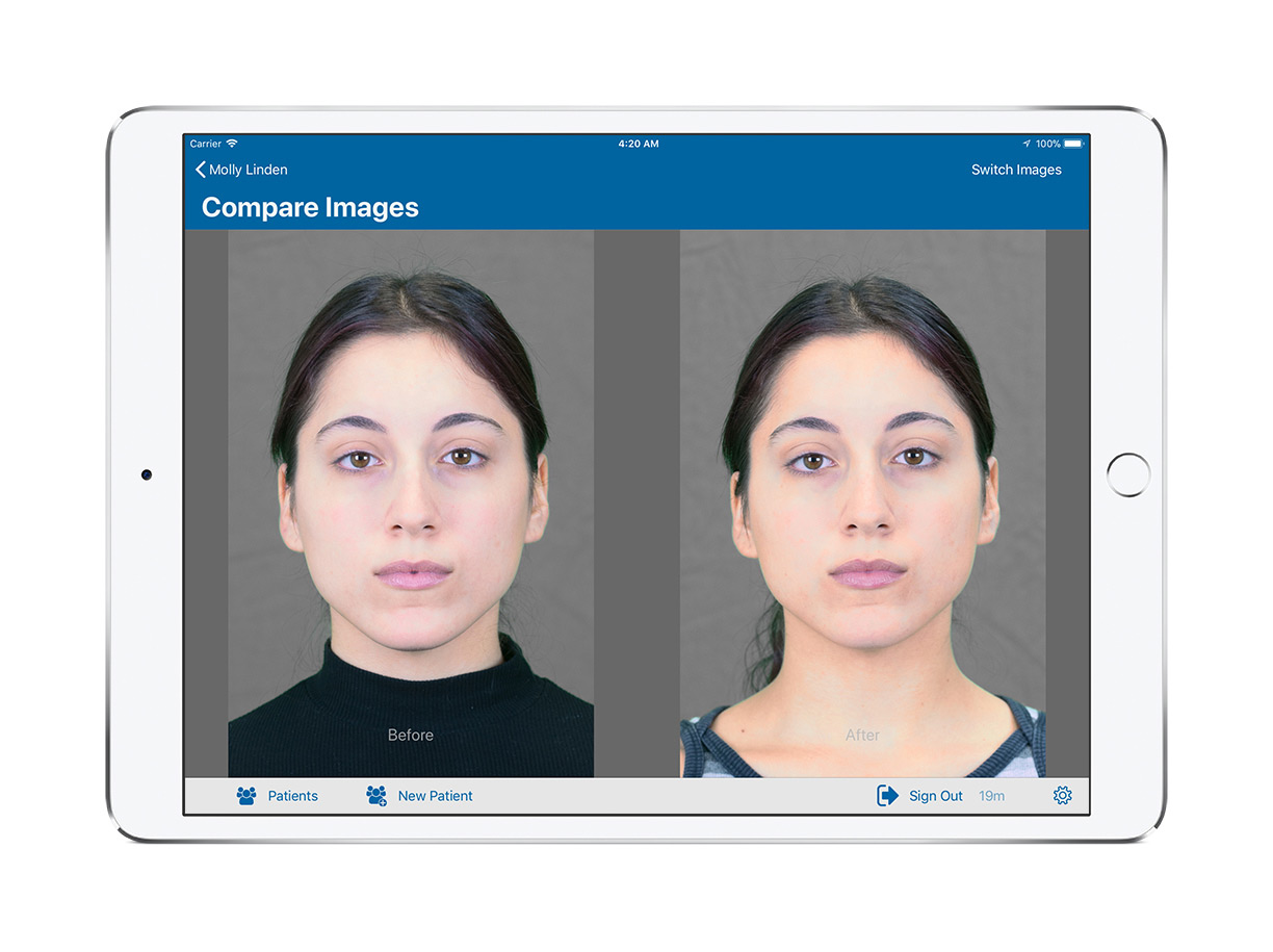 screen shot patient image